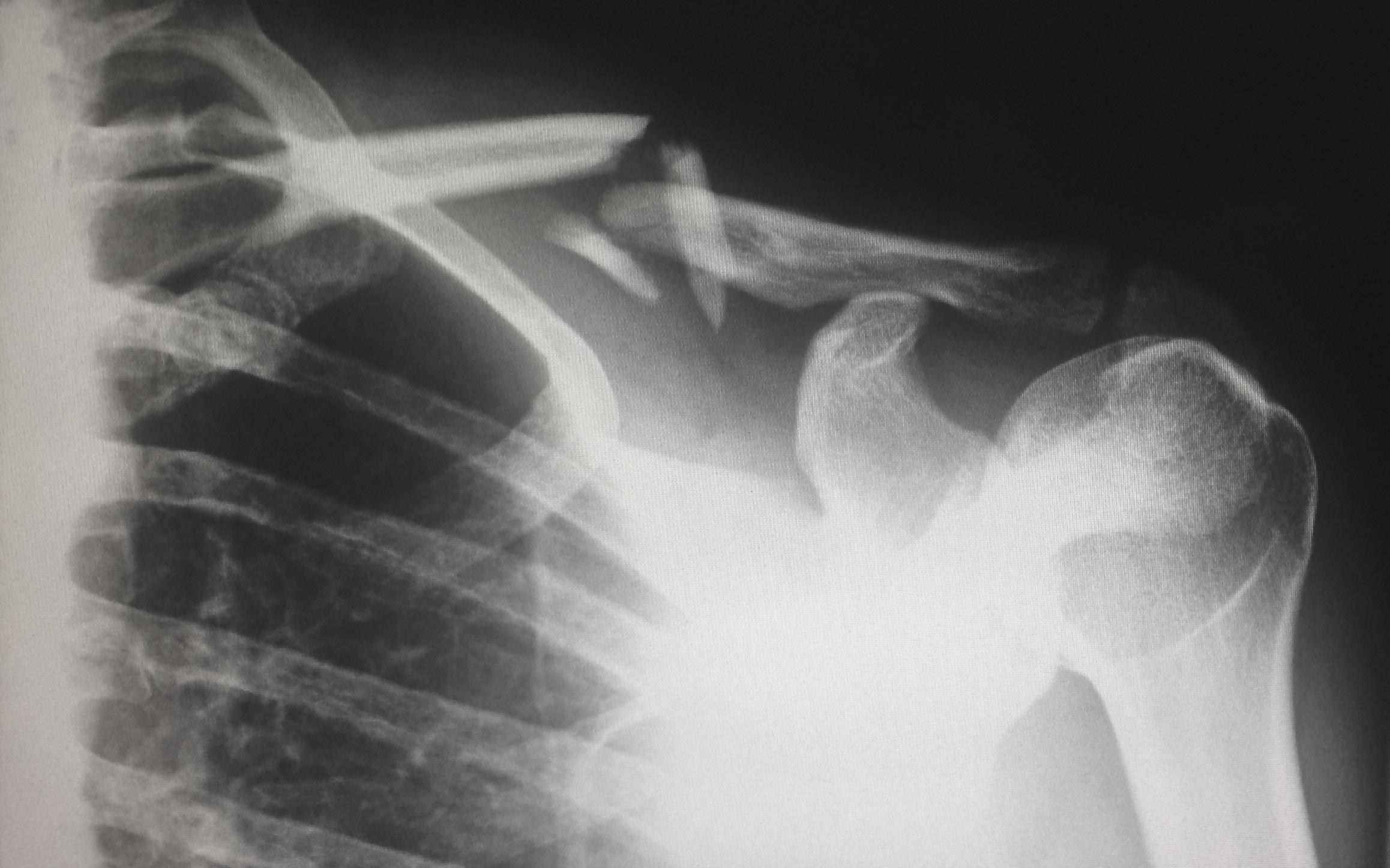 Injuries & Surgery